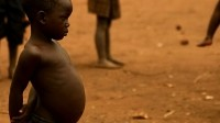 Research to prove that more food is not the solution to malnutrition