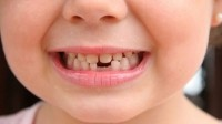 Cities with fluoridated water see half the tooth decay among kids